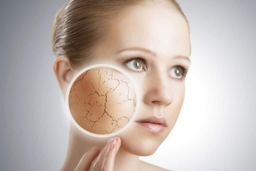 Como o estresse afeta a sua pele? 1