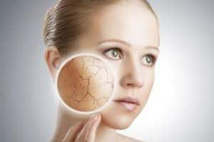 Como o estresse afeta a sua pele? 3