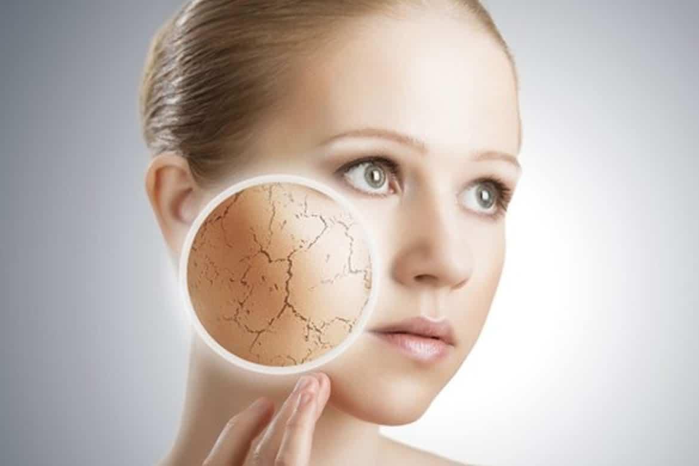 Como o estresse afeta a sua pele? 2